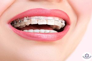 أسعار تقويم الأسنان 2021