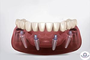 فوائد زراعة الاسنان أخطارها و أسعارها المسواك لطب الاسنان المهيدب لطب الاسنان سابقا
