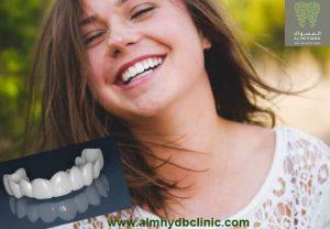 ابتسامة هوليود المتحركة سناب اون سمايل سعرها فوائدها واضرارها|المهيدب