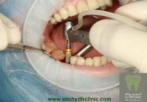 سعر زراعة الاسنان في المهيدب تعرف علي اسعار زراعة الاسنان في الرياض جدة تركيا مصر الفلبين