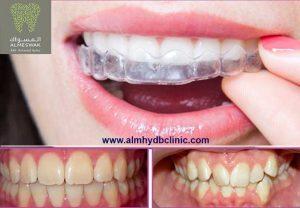 تعرف علي تكلفة تقويم الاسنان الشفاف في المهيدب مميزات وعيوب | المسواك لطب الاسنان