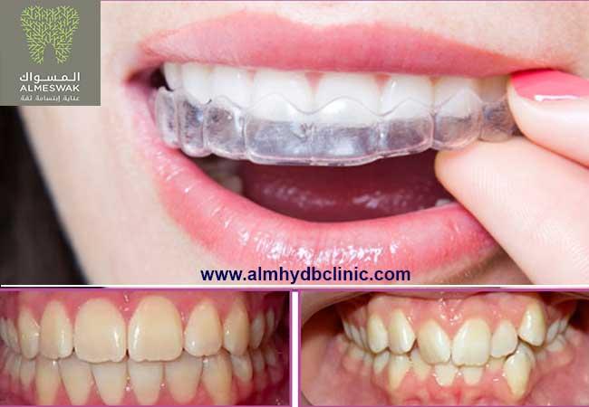 تعرف علي تكلفة تقويم الاسنان الشفاف وهل يمكن استخدامة لجميع الحالات